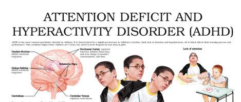 Attention deficit and hyperactivity disorder – ADHD (II)