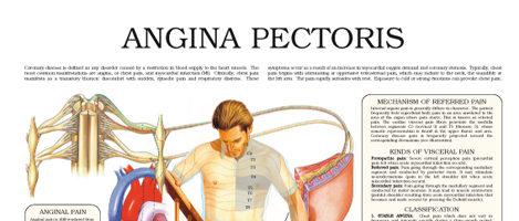 Angina Pectoris (II)