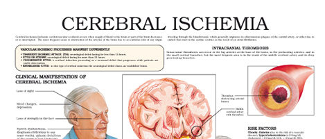Cerebral Ischemia