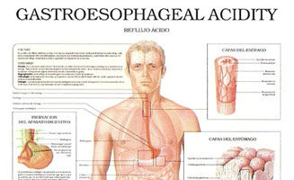 Gastroesophageal Acidity – Acid Reflux