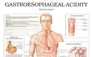 Gastroesophageal Acidity – Acid Reflux