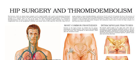 Hip Surgery and Thromboembolism
