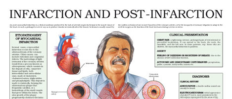 Infarction and post infarction