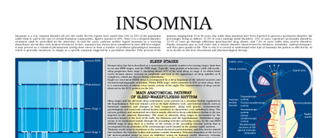 Insomnia (II)
