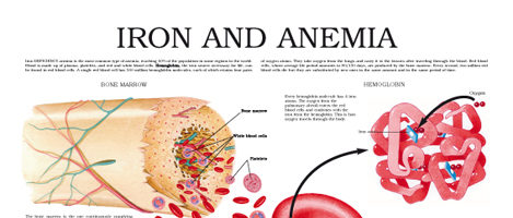 Iron and anemia