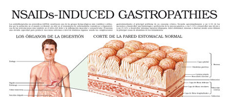 Non steroidal anti-inflammatories (NSAIDs) – Induced gastropathies