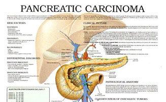 Pancreatic carcinoma