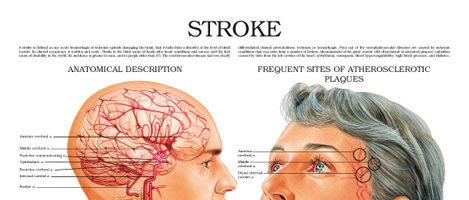 Stroke (ACV) II