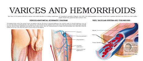 Varices and Hemorrhoids