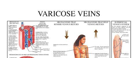 Varicose veins (II)