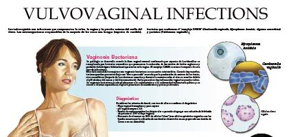 Vulvovaginal infections