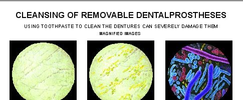 Cleansing of removable dental prostheses