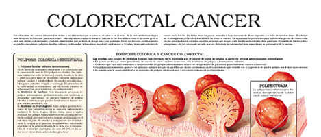Colorectal cancer (II)