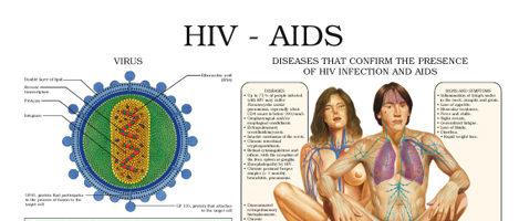 HIV – AIDS