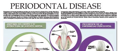 Periodontal disease I
