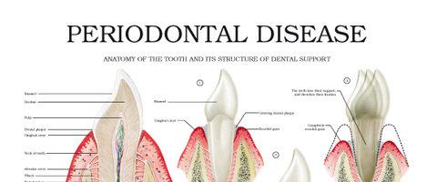 Periodontal disease II
