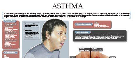 Asthma (II)