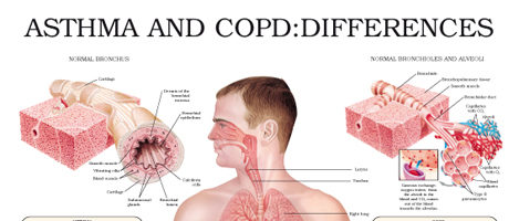 Asthma and COPD: differences