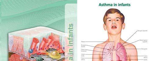 Asthma in infants