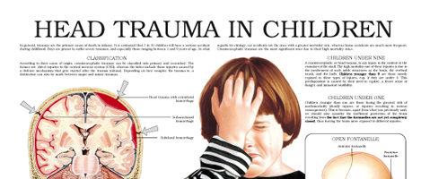 Head trauma in children