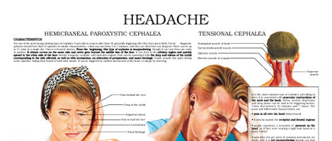 Headache, neuralgia cephalea and migraine