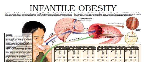 Infantile obesity