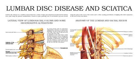 Lumbar disc disease and sciatica