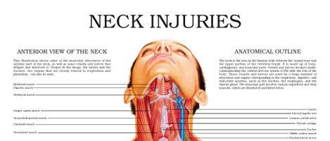 Neck injuries