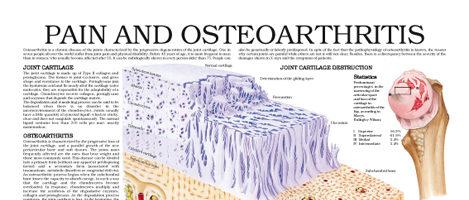Pain and osteoarthritis