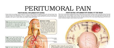 Peritumoral pain