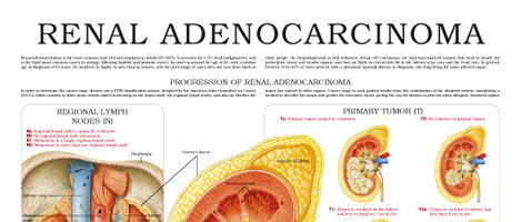 Renal adenocarcinoma