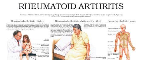 Rheumatoid arthritis (III)