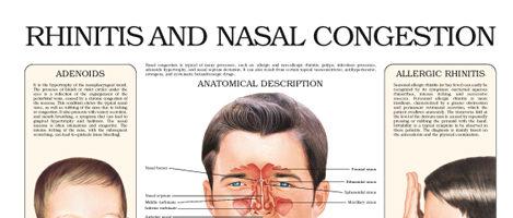 Rhinitis and nasal congestion