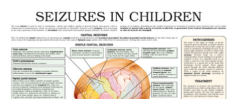 Seizures in children