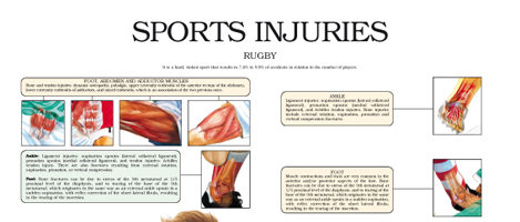 Sports injuries in Rugby
