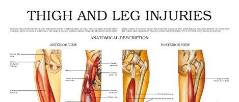 Thigh and leg injuries