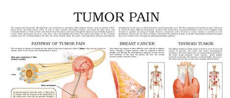 Tumor pain