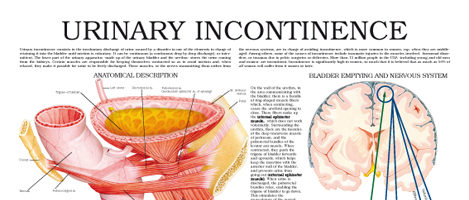 Urinary incontinence (II)