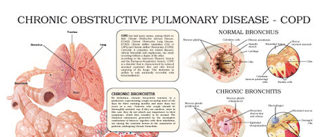 Chronic obstructive pulmonary disease – COPD