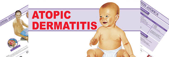 Atopic dermatitis