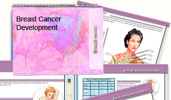 Breast cancer development