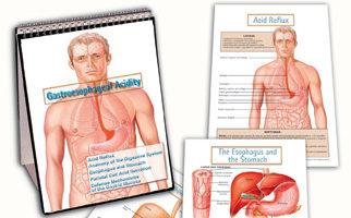 Gastroesophageal reflux