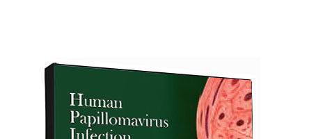 HPV Human Papillomavirus Infection Pocket Guide