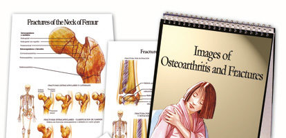 Images of osteoarthritis and fractures