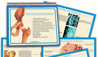 Osteoporosis (II)