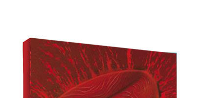PNH Paroxysmal Nocturnal Hemoglobinuria Pocket Guide