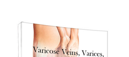 Guía de bolsillo para venas varicosas, várices y hemorroides