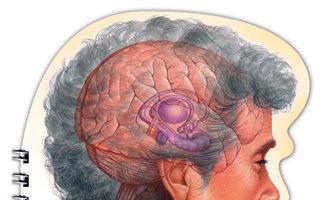 Alzheime's Disease