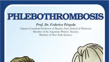 Phlebothrombosis