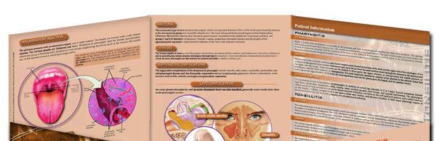 Tonsillitis